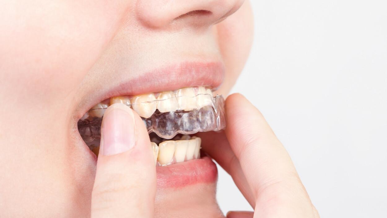 SKJÆRER TENNER: Den vanligste metoden for å beskytte tennene ved tanngnissing, er bruk av bittskinne. FOTO: NTB Scanpix