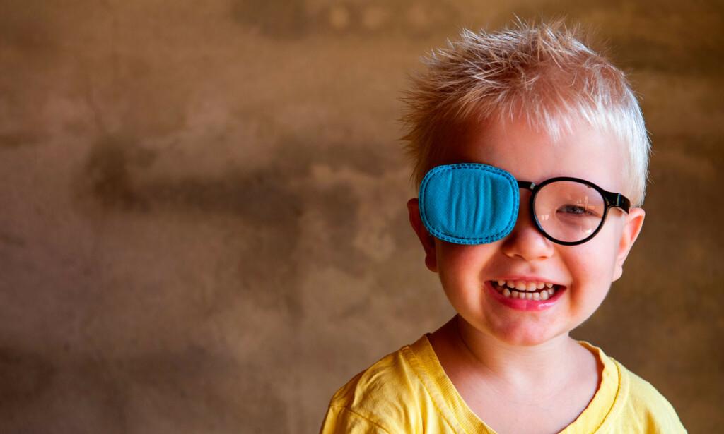 SKJELER: Lappebehandlingen vil ikke fjerne skjelingen, men sikre at synet bevares på begge øyne. Foto: NTB Scanpix/Shutterstock