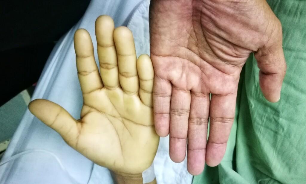 Hånden til venstre er blek på grunn av blodmangel (anemi) - konsentrasjonen av røde blodlegemer i blodet har mye å si for hudens utseende. Foto: NTB Scanpix / Shutterstock / 3696461