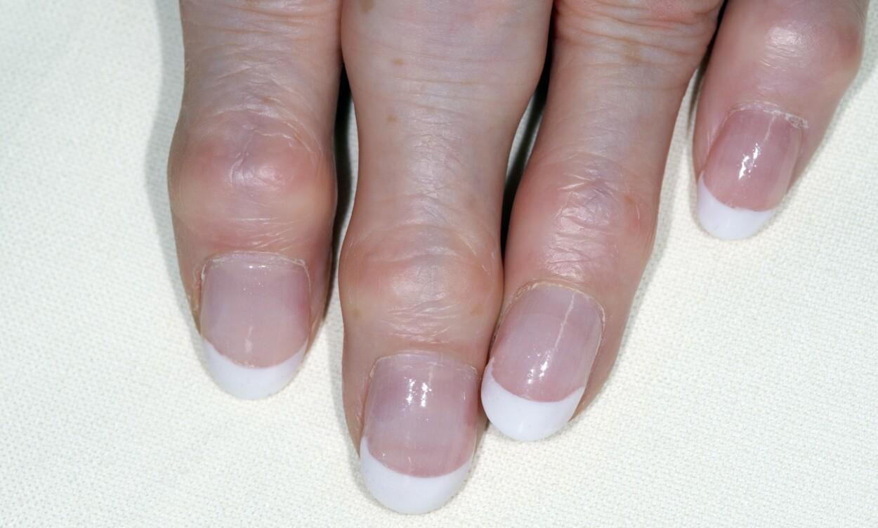 KNUTER PÅ FINGRENE: Heberdenske knuter på fingrene til en 68 år gammel kvinne med slitasjegikt. Legg merke til hvordan fingrene er bredere på nedsiden av neglene. Foto: NTB / Science Photo Library.