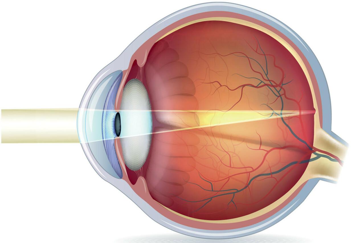 SYNSSKARPHET: Hvor godt ser du? Illustrasjon: NTB Scanpix/Shutterstock