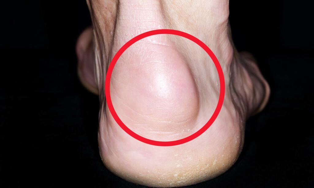 STOR KUL: Slimpose i hælen med stor hevelse hos mann på 65 år. Ikke alle bursitter i hælen gir stor hevelse, men det kan likevel være smertefullt. Foto: NTB Scanpix/Shutterstock