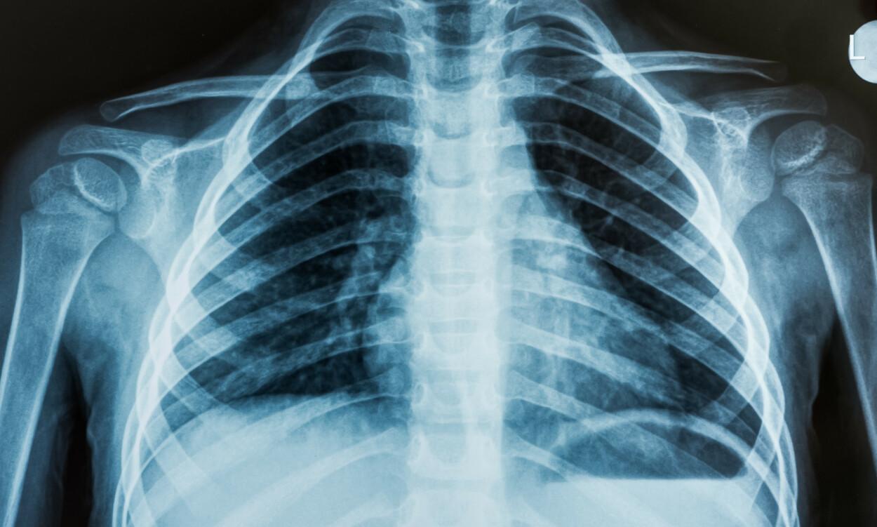 IONISERENDE STRÅLING: Røntgenstråling er såkalt ioniserende stråling, som øker risikoen for kreft - men stråledosen man får ved røntgendiagnostikk er vanligvis så lav at den er av svært liten betydning. Foto: NTB Scanpix/Shutterstock