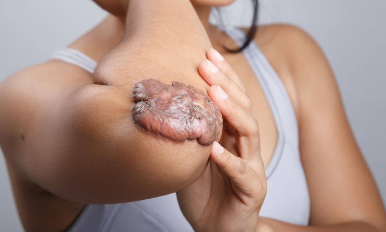 STORE: Keloider kan vokse i flere år og kan bli mye større enn den opprinnelige skaden var. Overkroppen er den vanligste plassen å få keloide arr. Foto: NTB Scanpix/Shutterstock