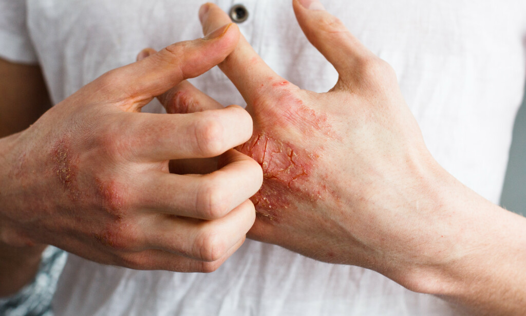 EKSEM: Atopisk eksem smitter ikke, men er en kronisk kløende hudsykdom. Foto: Shutterstock / NTB Scanpix