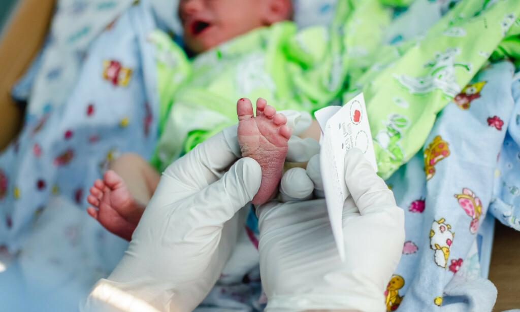NYFØDT: Alle nyfødte, norske barn skal ha tilbud om undersøkelse (screening) for 25 sjeldne sykdommer. Her oppdages det om barnet har Fenylketonuri. Foto: Shutterstock / NTB Scanpix
