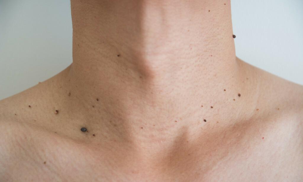 BEKYMRET FOR TEGN PÅ KREFT: Noen kjenner normale strukturer i kroppen og blir bekymret for disse, andre kan oppdage hudforandringer eller tegn på infeksjon. Oppsøk lege for å avklare om oppdagelsen gir grunn til videre undersøkelse. Foto: NTB / Shutterstock.