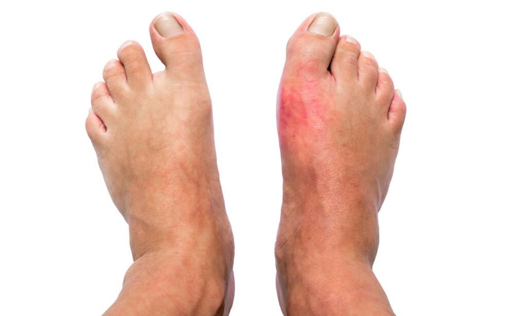 STORETÅ: Grunnleddet i storetåa blir ofte rammet ved anfall av urinsyregikt. Bilde av føttene til mann med urinsyregikt, hvor høyre tå er hoven og rød. Foto: Shutterstock / NTB Scanpix