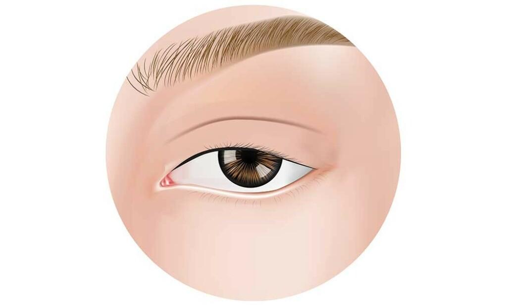 MINDRE ØYEÅPNING: Medøfdte forandringer i foldene rundt øyet kan føre til skjeling og synsforstyrrelser. Illustrasjonen viser også hengende øyelokk, ptose. Illustrasjon: NTB Scanpix/Shutterstock