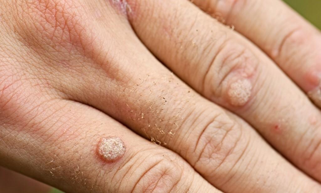 VORTER: Vorter på hendene skyldes virus. Foto: Shutterstock / NTB Scanpix