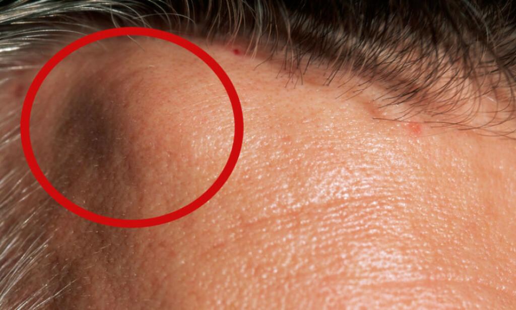 KUL I ANSIKTET: Lipomer er som oftest små kuler, og kan oppstå overalt på kroppen. De kjennes under huden, og det er ikke alltid at man kan se dem utenpå huden, slik som på bildet. Foto: NTB Scanpix/Shutterstock