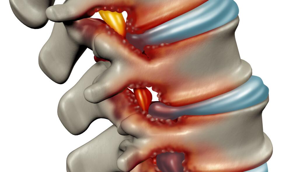 TRANGE FORHOLD: Bildet viser hvordan ryggmargen (gulfarget), løper i den benete kanalen og ved spinal stenose kommer i klem (farget rødt) på grunn av bukende mellomvirvelskiver og benete påleiringer på ryggvirvlene. Foto: NTB Scanpix / Shutterstock