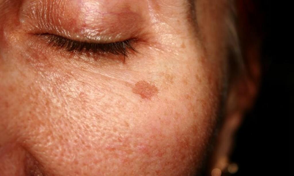 LENTIGO SOLARE - også kalt leverflekk på folkemunne. Foto: NTB Scanpix / SHUTTERSTOCK