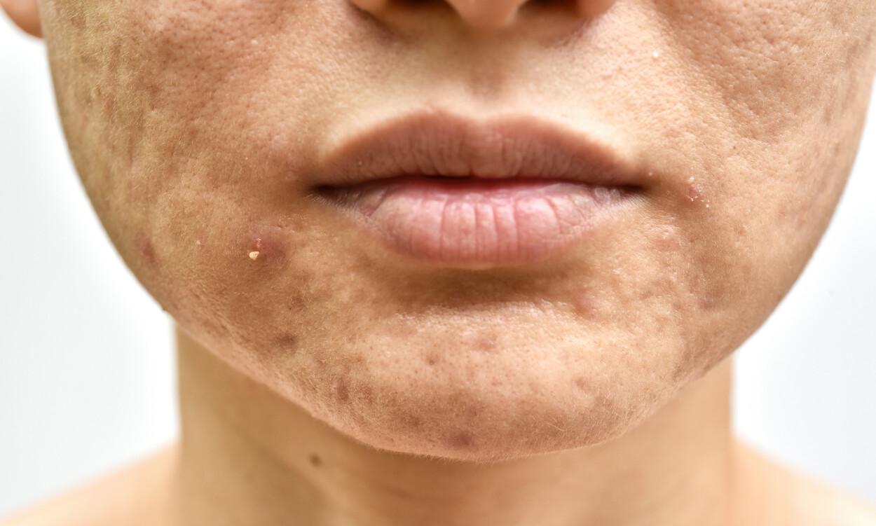 AKNE HOS EN VOKSEN KVINNE. Typiske akneforandringer lokalisert i nedre del av ansiktet. FOTO: NTB Scanpix / Shutterstock