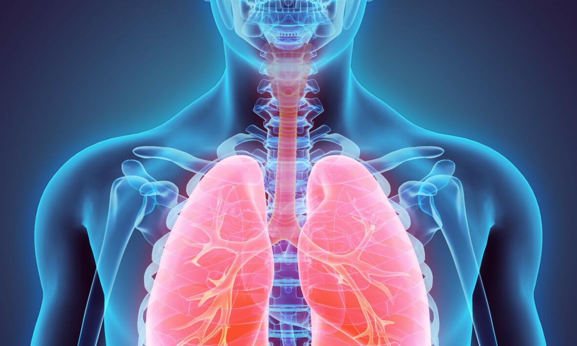 ATELEKTASE: Atelektase er en tilstand som rammer lungene. Foto: Shutterstock / NTB Scanpix