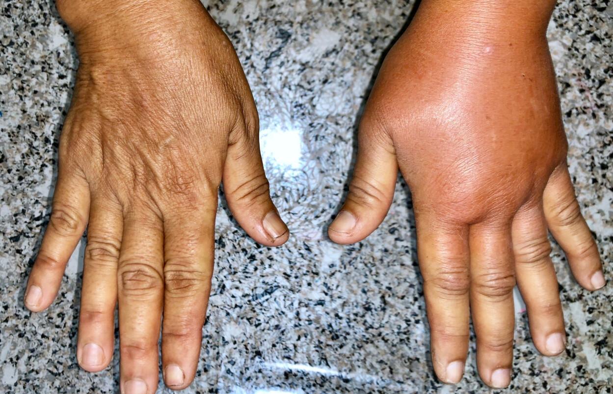 LYMFØDEM: Lymfødem gir hevelse, oftest i en arm eller i et ben. Foto: NTB Scanpix/Shutterstock