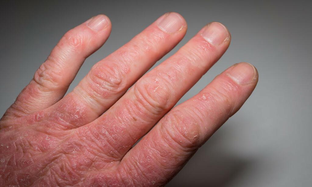 EKSEM OG LEDDVONDT: Bilde av hånden til pasient med psoriasis leddgikt. Lillefingerens ytre ledd er rammet. Foto: Foto: NTB Scanpix