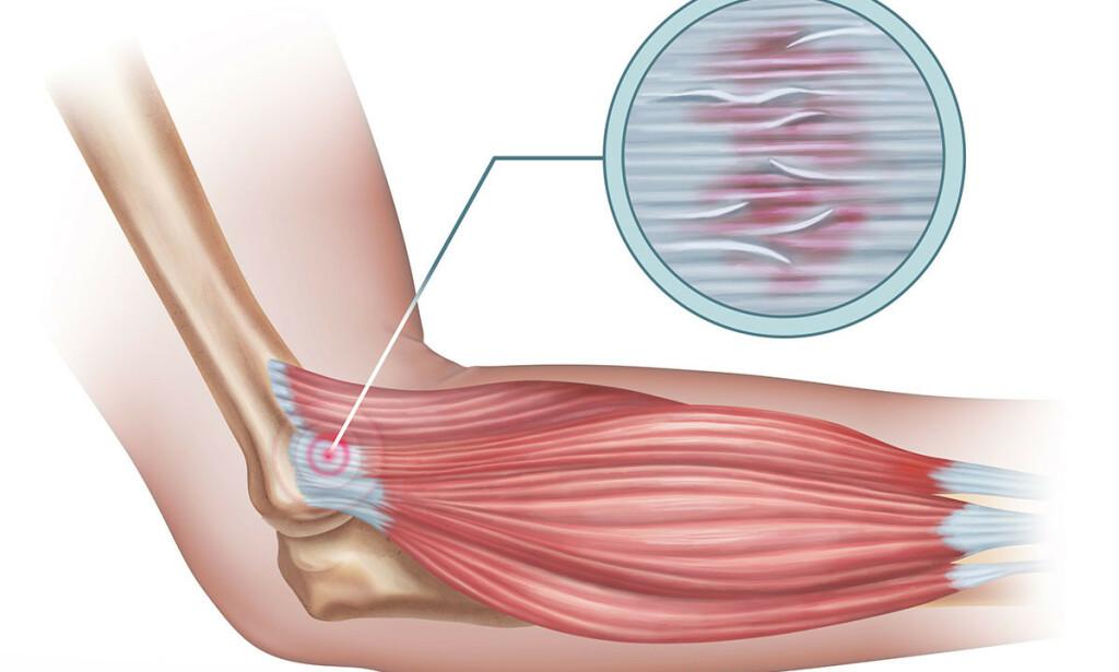SENER: Senene binder muskler og skjelett sammen. Her har det blitt rifter og betennelser i en sene i albuen. Illustrasjon: NTB Scanpix/Shutterstock