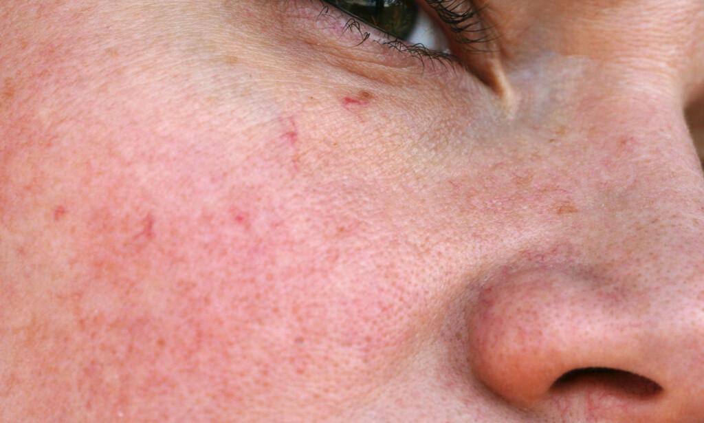 SPRENGTE BLODKAR: Synlige utvidete blodkar i kinn og nesevinger hos en ellers frisk pasient. FOTO: NTB Scanpix / Shutterstock / Geinz Angelina