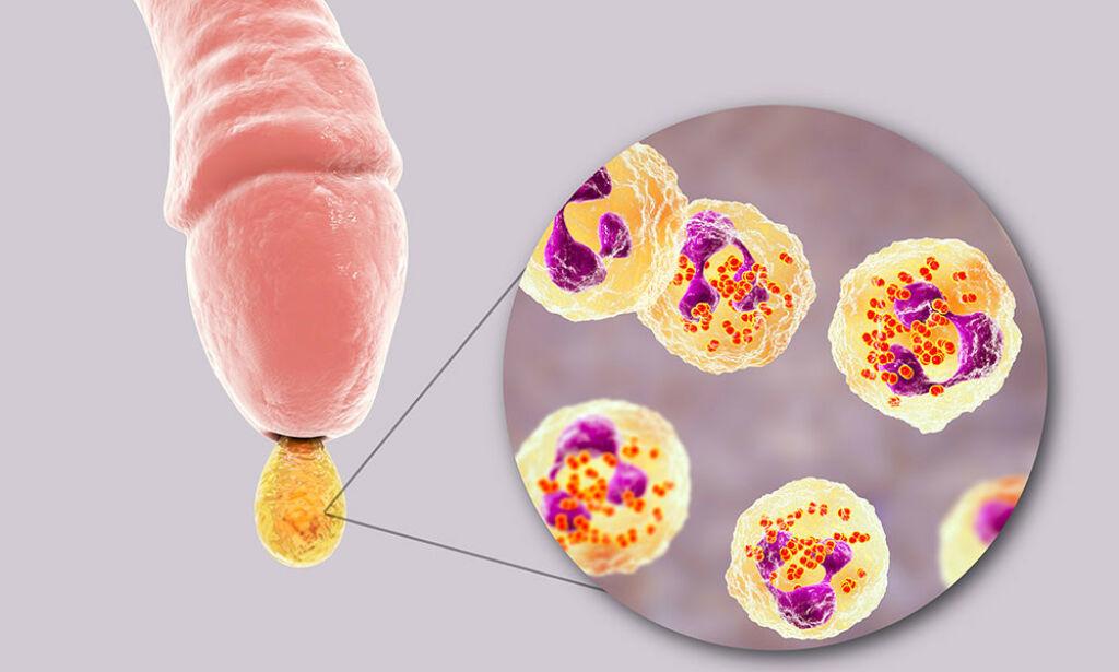 Gonoré: Smitte, symptomer, test og behandling - Lommelegen