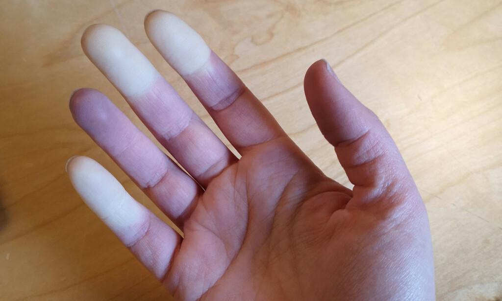 RAYNAUDS SYKDOM: Under et anfall blir fingrene plutselig hvite og kalde. Foto: NTB Scanpix/Shutterstock