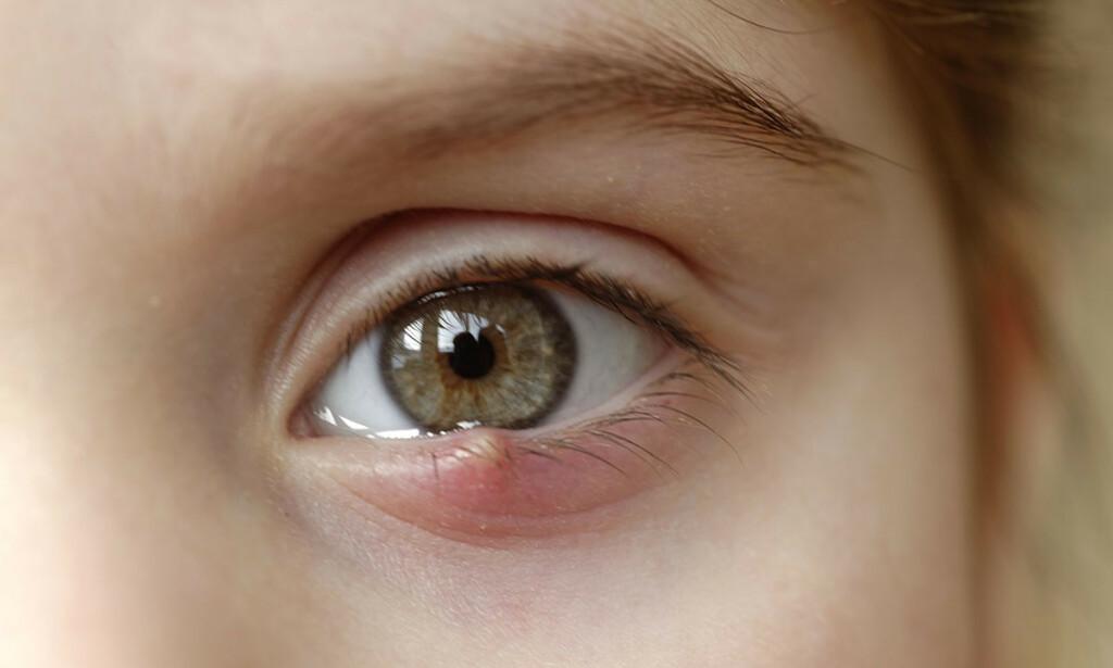 STI PÅ ØYET: Sti på øyet er i de fleste tilfeller ikke farlige og påvirker ikke synet. Foto: Science Photo Library/Scanpix