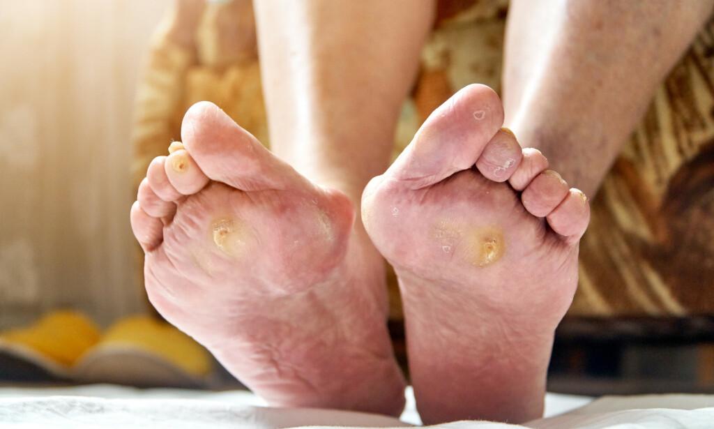 FORTYKKET HUD OVER OVER TRYKKPUNKTER: Truende sårdannelse hos pasient med nedsatt førlighet i føttene som ett resultat av langvarig diabetes med forhøyet blodsukker. FOTO: NTB Scanpix / Shutterstock / Troyan