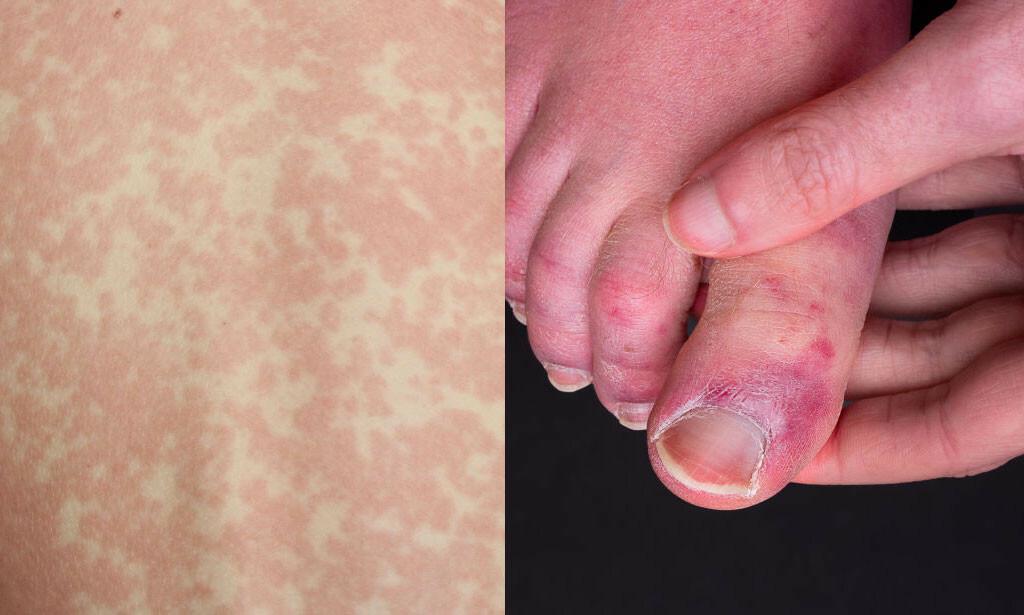 """UTSLETT OG """"COVID TOES"""": Utslett og tær med blåmerke liknende flekker. To eksempler på hudforandringer observert ved coronavirus."""