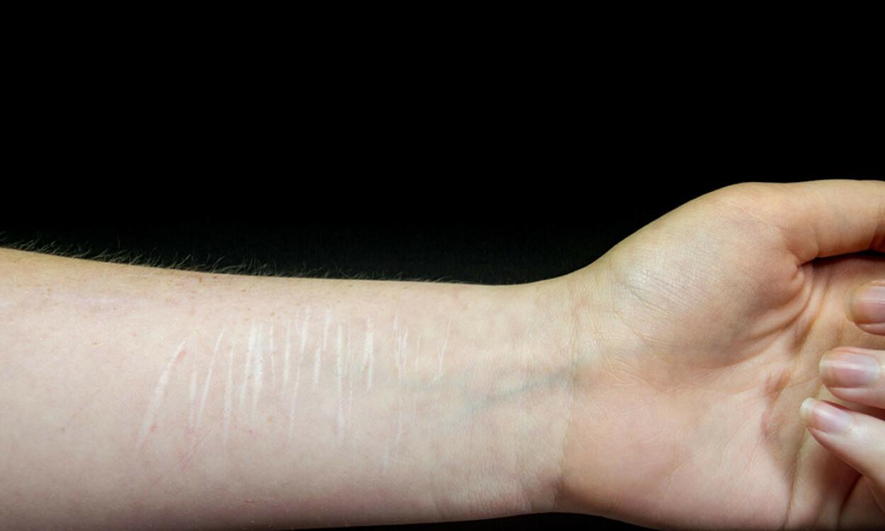 KUTTET SEG: Arr etter direkte selvskading. Foto: NTB Scanpix/Shutterstock.