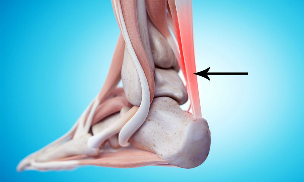 VONDT I HÆLEN ELLER BAK LEGGEN? Smerten kan være lokalisert bak hælen i senefestet, eller lengre opp. Illustrasjon: NTB Scanpix/Shutterstock