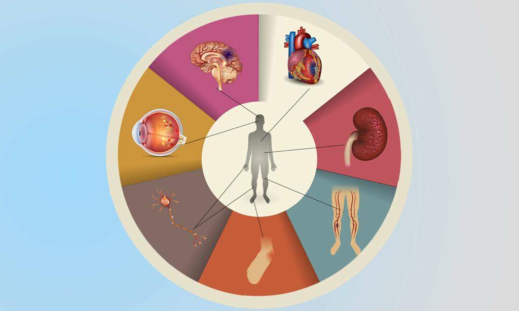 SKADE PÅ NERVER OG SMÅ BLODKAR: Konsekvensene for en dårlig medisinert diabetes kan bli store. Illustrasjon: Tefi / Shutterstock / NTB
