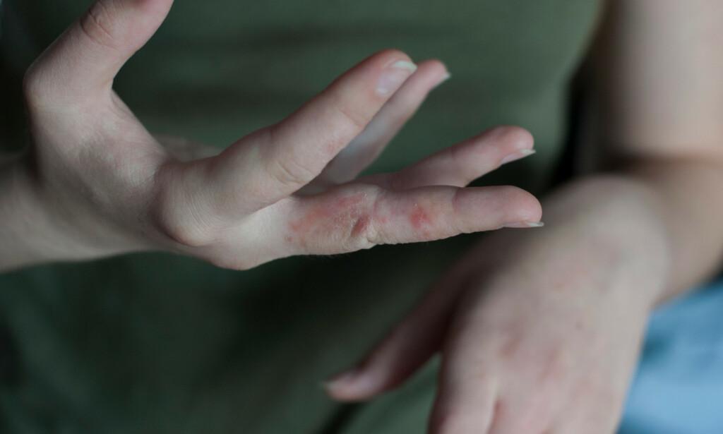 SKABBUTSLETT MELLOM FINGRENE: Typisk lokalisasjon for utslett forårsaket av skabbmidden. Ved undersøkelse med hudmikroskop kan legen finne ganger og skabbmidd i huden. Foto: photomystery / Shutterstock / NTB