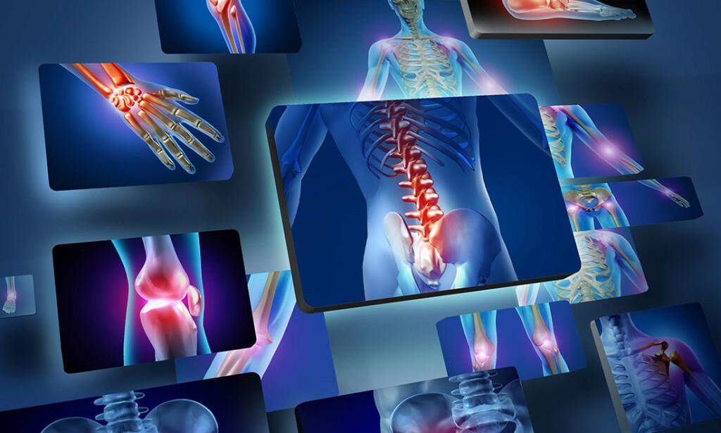 SMERTER i LEDD: Det finnes mange ulike årsaker til leddsmerter. Foto: Lightspring / Shutterstock / NTB