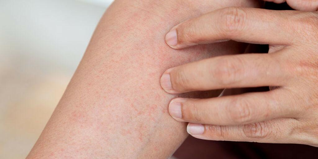 image: Tørr og rød hud. Kan det være eksem?