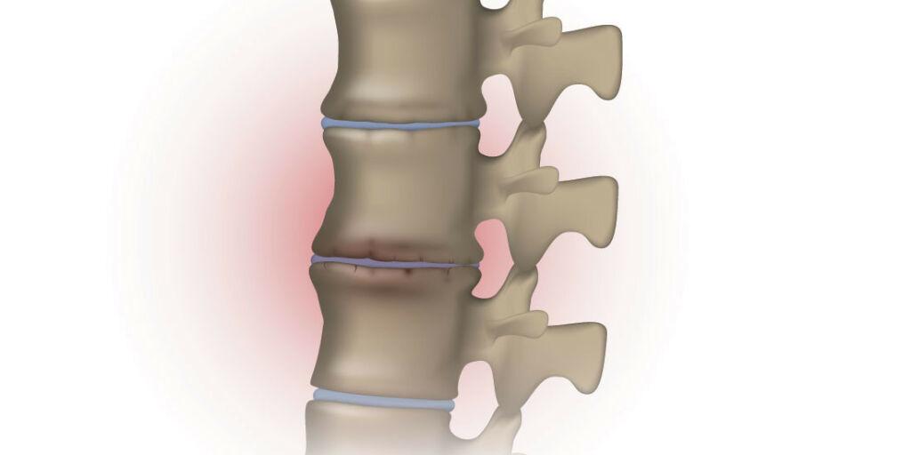 image: Slitasje i ryggen og betennelse i fotsålen