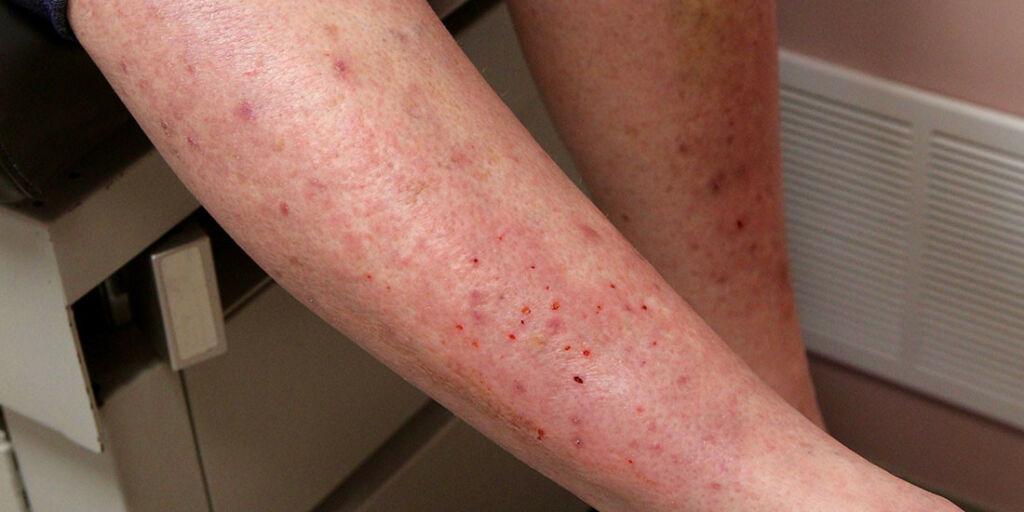 image: Intens kløe på legger, knær og albue. Kan det være dermatitis herpetiformis?