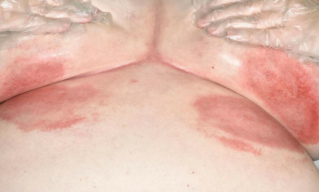 INTERTRIGO - det vil si rødt, betent utslett der hud møter hud. Hos denne kvinnen er utslettet under brystene. Ett typisk sted for intertrigo. Foto: Science Photo Library / NTB