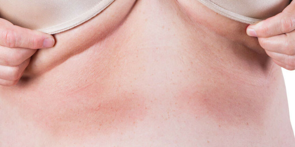 image: Intertrigo: Utslett hvor hud ligger mot hud