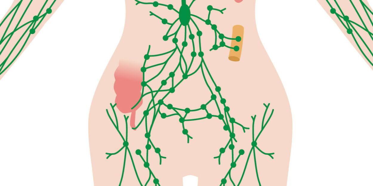 image: Forstørrede lymfeknuter i lysken, kan det være noe farlig?