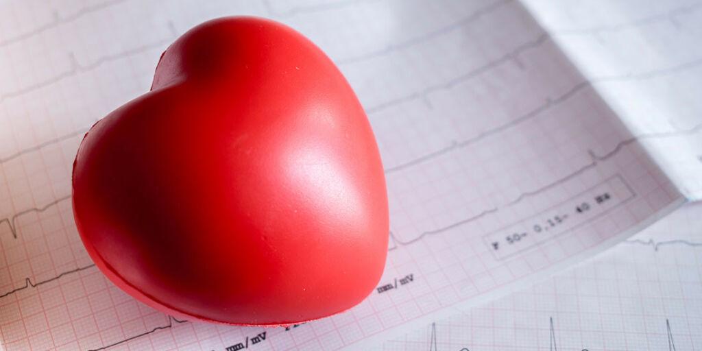 image: Pulsen hopper over slag og hjertebank. Ekstrasystoler?