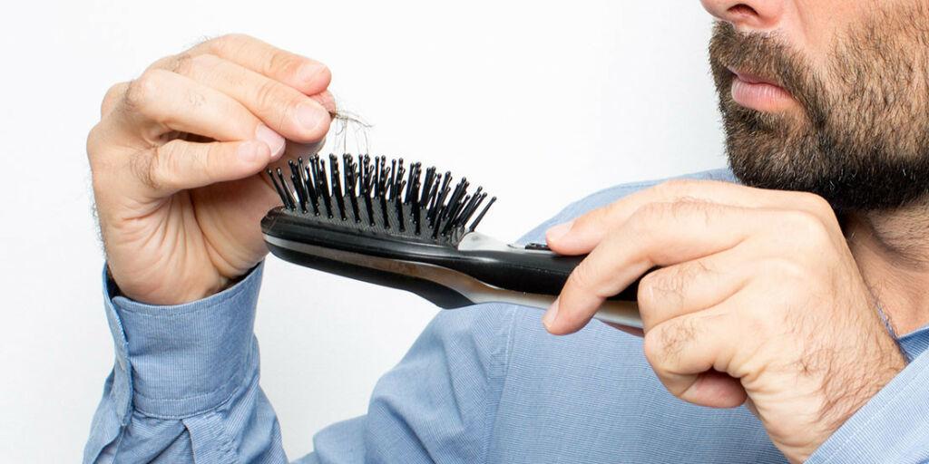 image: Sliter med hodebunnen og håravfall