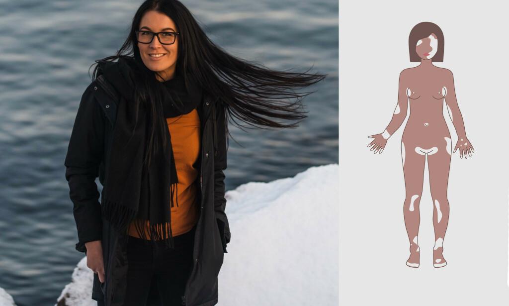 VITILIGO: Flekkene til Miriam Lauritsen vises godt når hun går i bikini. Bildet til høyre viser eksempler på steder vitiligo kan oppstå på kroppen. Foto: Privat til venstre og Fancy Tapis / Shutterstock / NTB