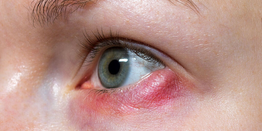 image: Kul på innsiden av øyelokket - hordeolum