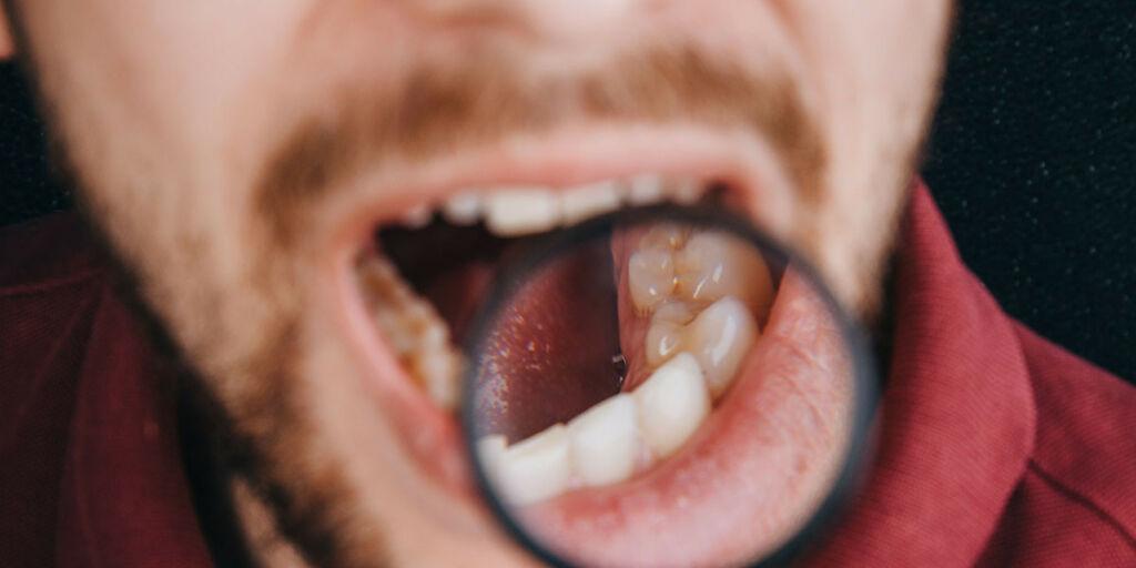 image: Gutt med helseangst tolker en helt normal tunge som kreftsuspekt