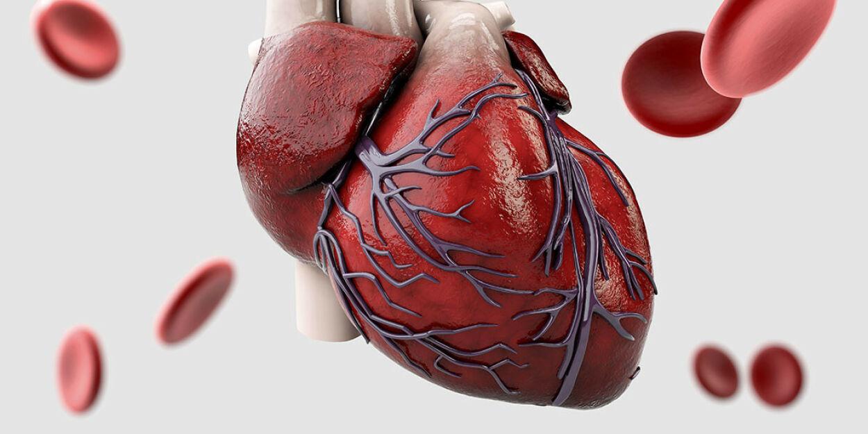 image: Brystsmerter og koronar angiografi