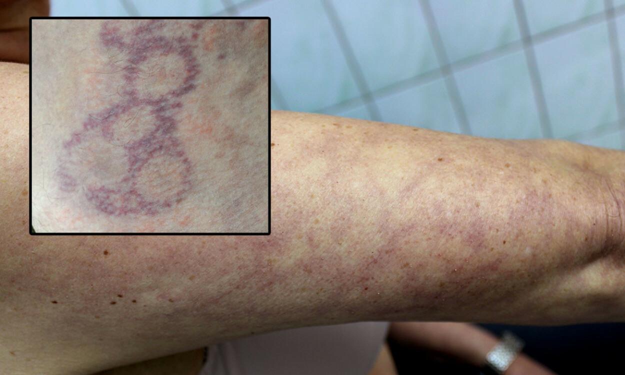 NETT I HUDEN: Et nett, eller en marmorering av årer i huden. Foto: Dermatology11 / Shutterstock / NTB Innfelt: Science Photo Library