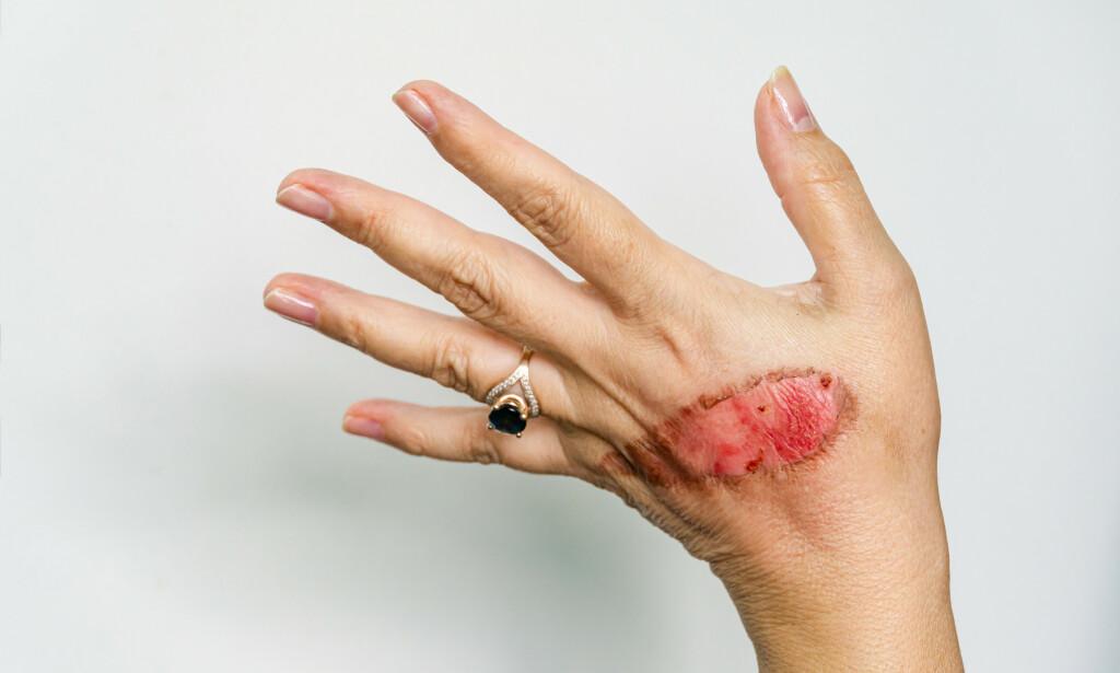 Andre grads forbrenning: En termal skade under tilheling. Skaden på dette bildet oppstod etter å ha fått kokende vann på hånden. Husk akutt førstehjelp som er nedkjøling: 20 minutter i 20 graders vann. Foto: Marinodenisenko / Shutterstock / NT