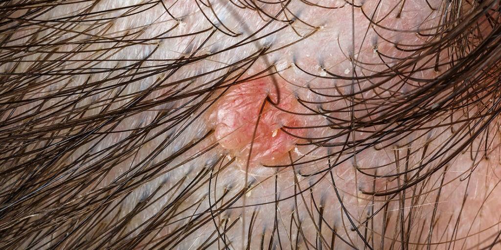 image: Arrlignende utvekst i hodebunnen - Mulig seborreisk keratose