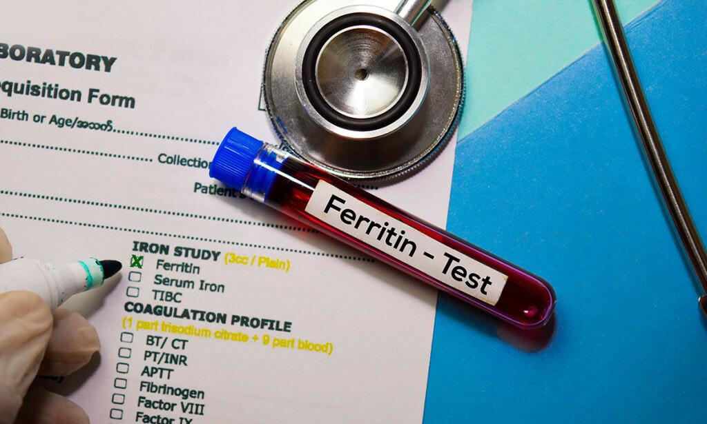 FERRITIN: Vanlig blodprøve sammen med hemoglobin som kan avdekke mangel på jern i kroppen. Foto: NTB / Alamy Stock Photo / Syahrir Maulana