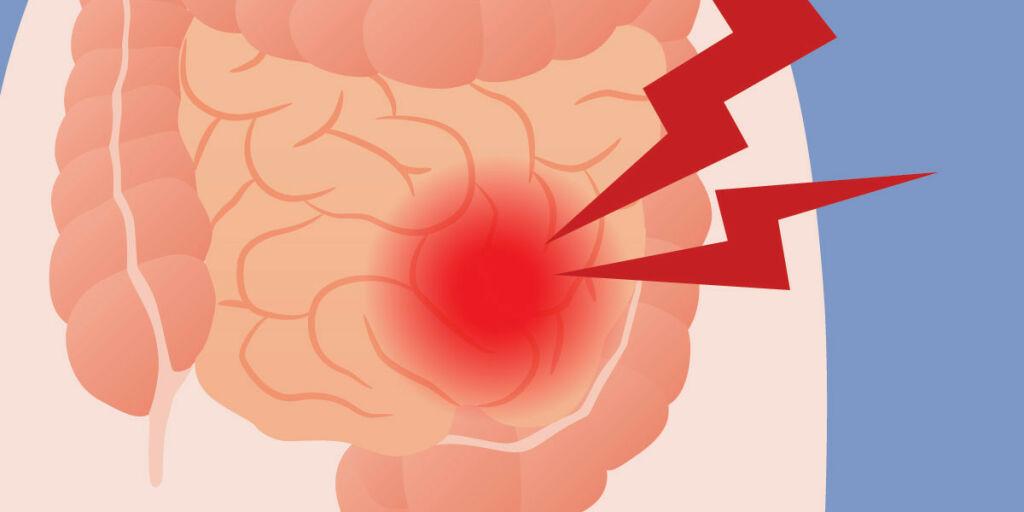 image: Hva er nytteverdien av å finne ut om man har irritabel tarm?